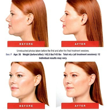 Before & After Kybella at Dermani Medspa