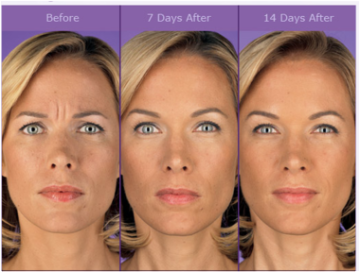 Before and After Botox at Dermani Medspa