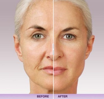 Before and After Juvederm at Dermani Medspa