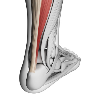 Treating Achillis Tendonitis
