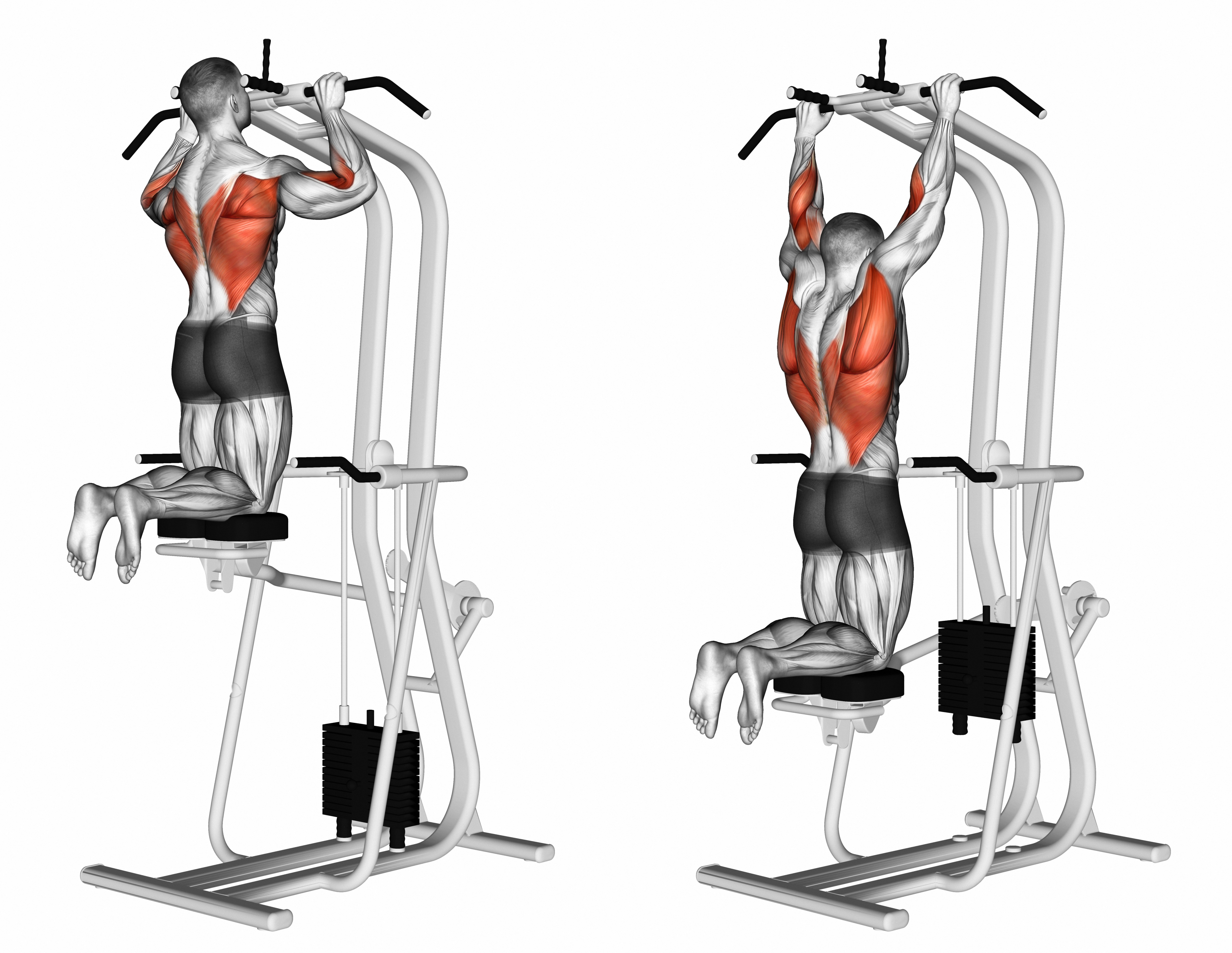 Back Series - Level 1 (Assisted Pull-ups