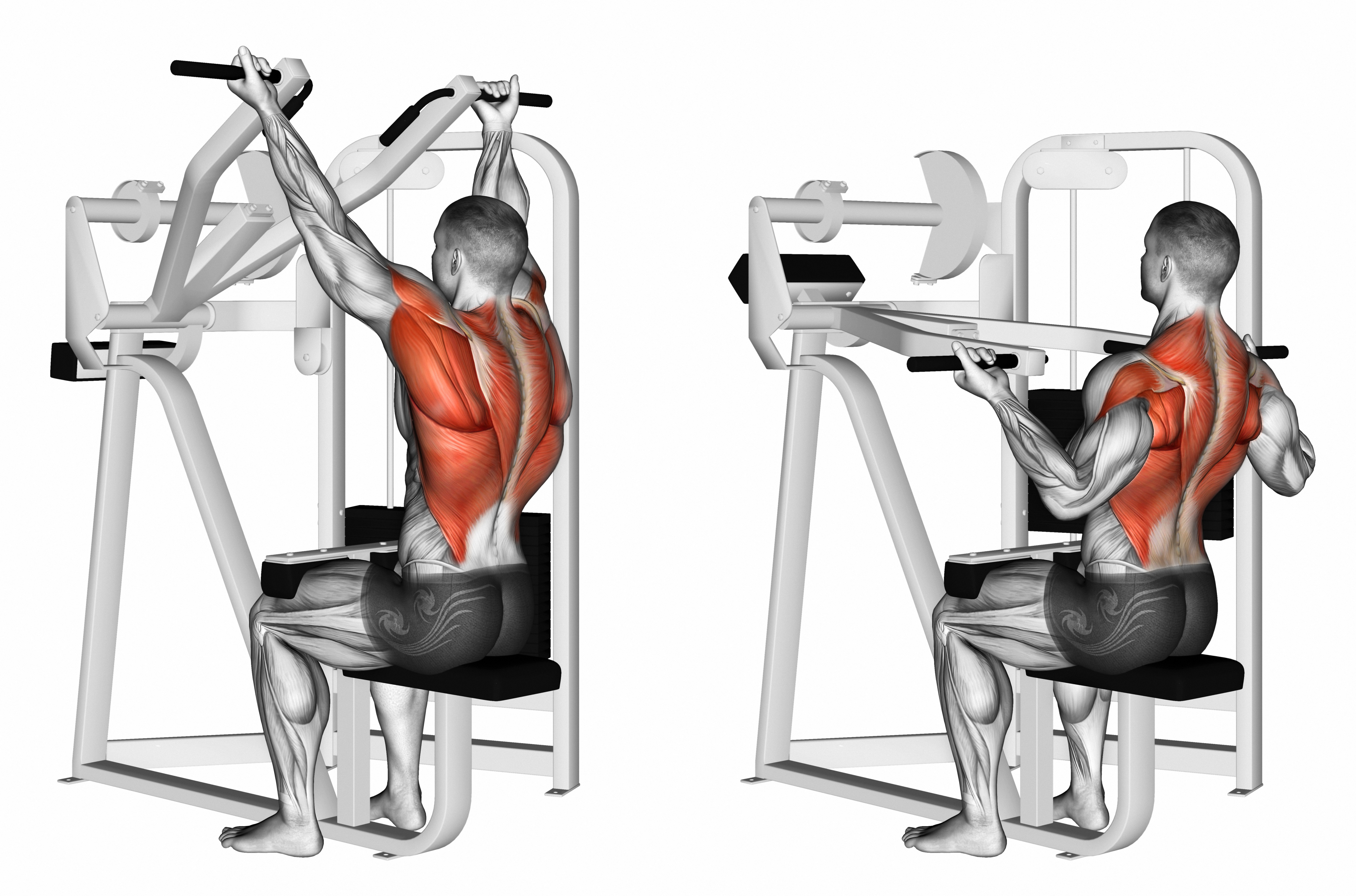 Back Series - Level 1 (Seated Pull Downs on Machine)