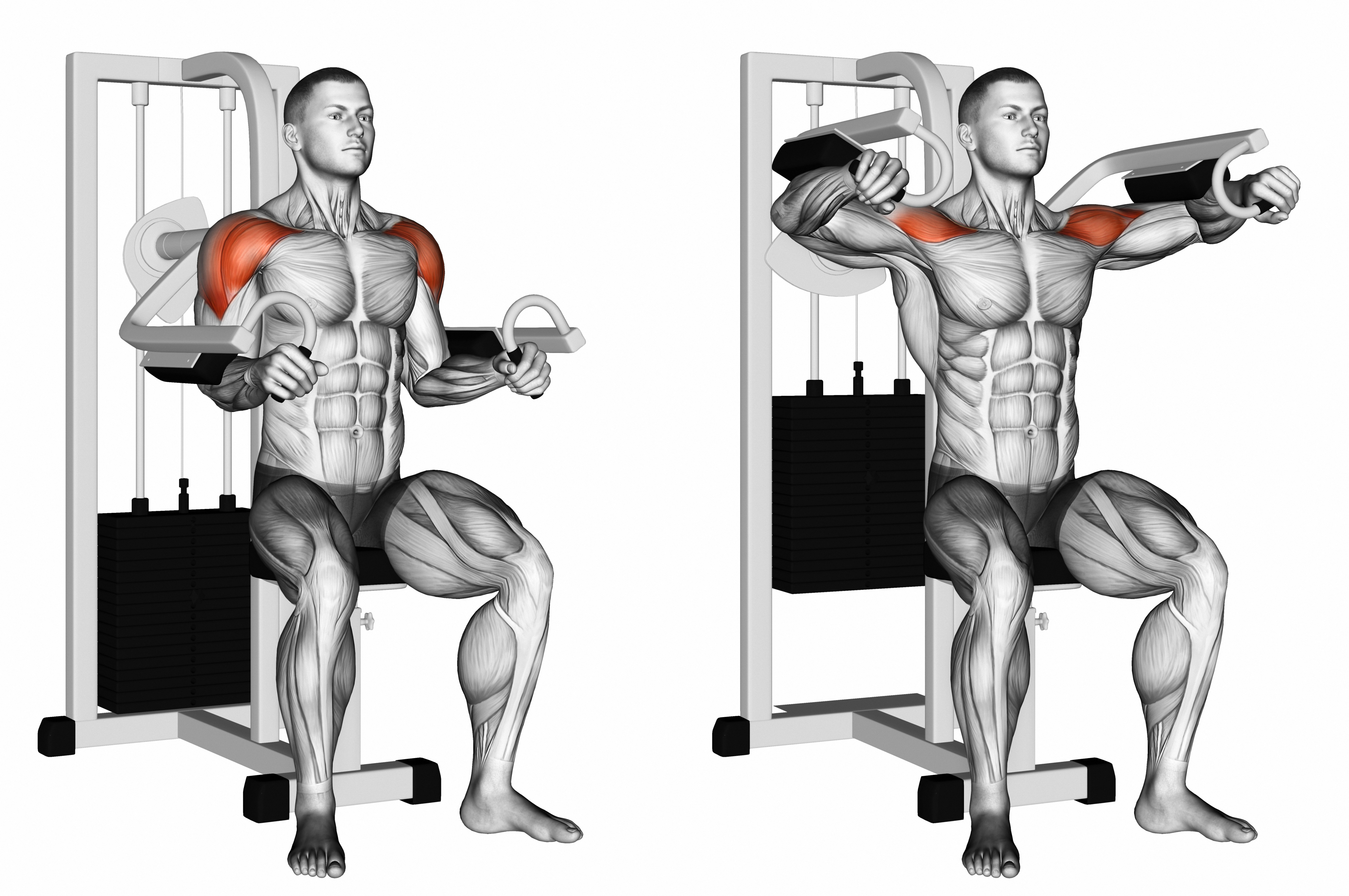 Shoulder Program - Level 2 Lateral Raises on Machine