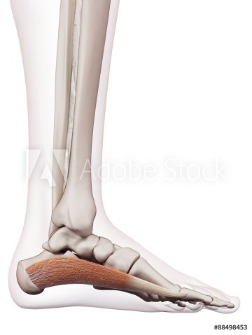 Treating Plantarfascitis